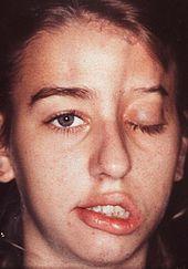 A young girl with facial palsy, complete ptosis, and marked atrophy of subcutaneous and bony structures on the left upper side of the face