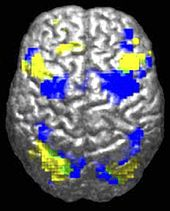 A human brain viewed from above. About 10% is highlighted in yellow and 10% in blue. There is only a tiny (perhaps 0.5%) green region where they overlap.