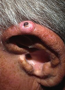Solitary, pink, dome-shaped papule on the superior helix of an adult