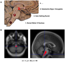 "Composite of three images, one in top row (described in caption as A), two in second row (described in caption as B). Top shows a mid-line sagittal plane of the brainstem and cerebellum. There are three circles superimposed along the brainstem and an arrow linking them from bottom to top and continuing upward and forward towards the frontal lobes of the brain. A line of text accompanies each circle: lower is ""1. Dorsal Motor X Nucleus"", middle is ""2. Gain Setting Nuclei"" and upper is ""3. Substantia Nigra/Amygdala"". A fourth line of text above the others says ""4. ..."". The two images at the bottom of the composite are magnetic resonance imaging (MRI) scans, one saggital and the other transverse, centred at the same brain coordinates (x=-1, y=-36, z=-49). A colored blob marking volume reduction covers most of the brainstem."