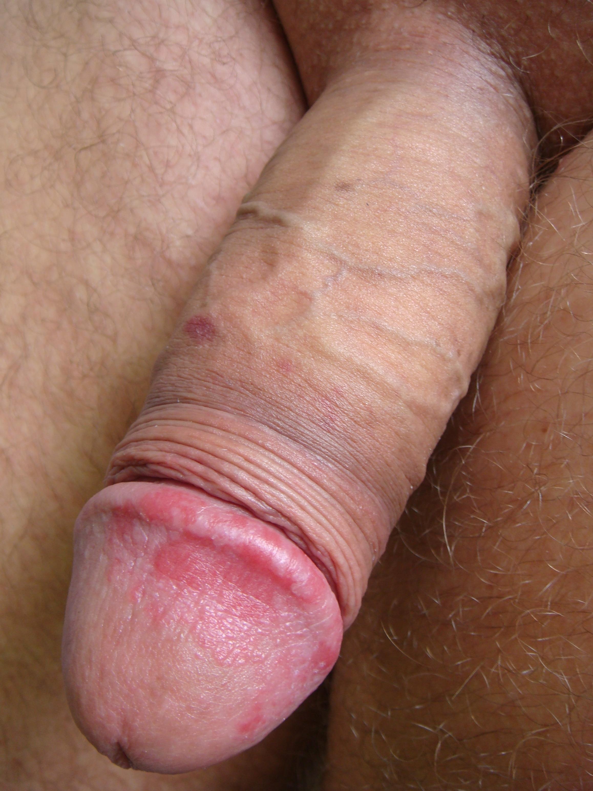 Секс при лечении половых инфекций 18 фотография