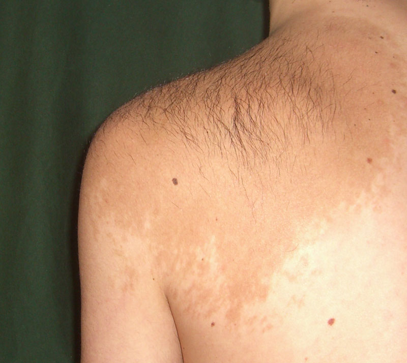 Skin discoloration: why does it happen? | library skinvision.