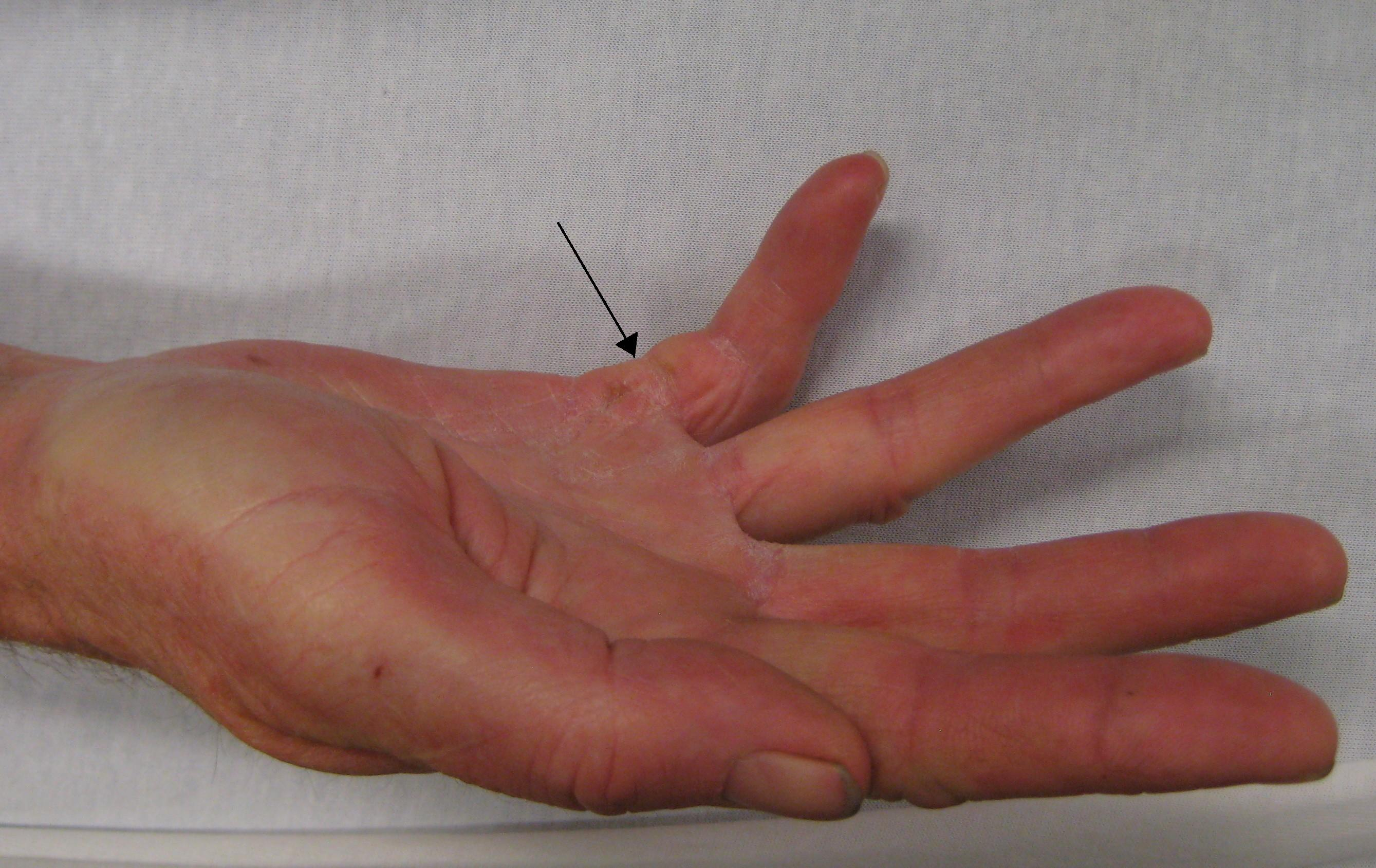 Dupuytren's contracture of the right little finger. Arrow marks the ...