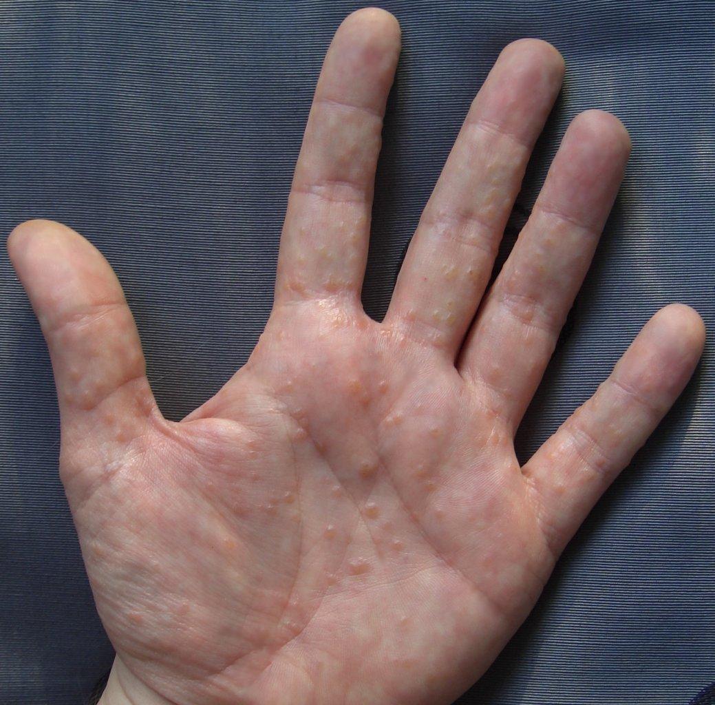 Смотреть фото самых больших кистеи рук 6 фотография