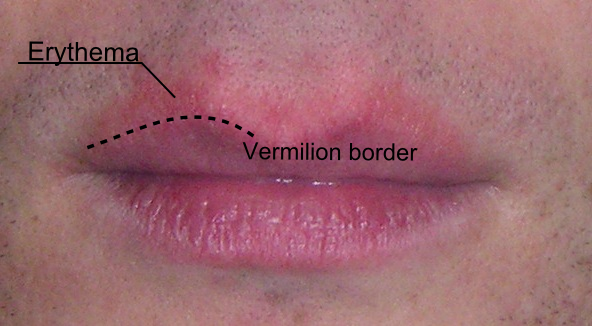 Red dry patch near lip