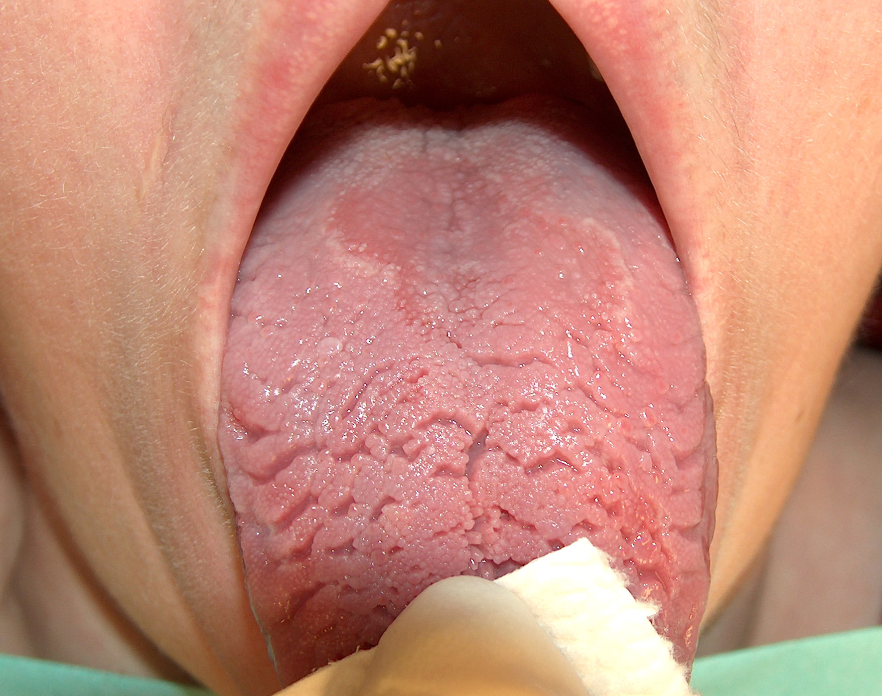 Geographic Fissured Tongue