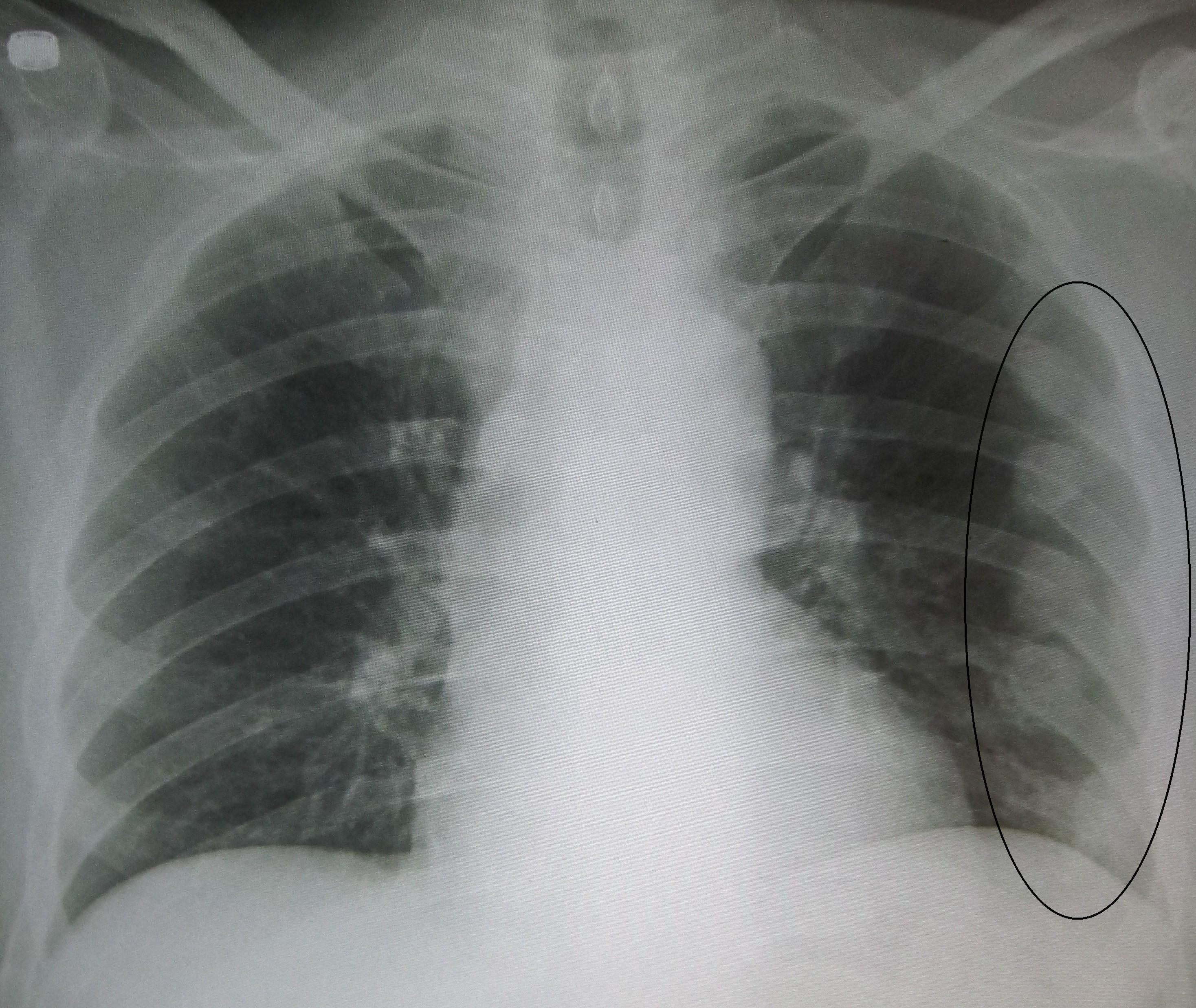Broken Ribs X-rays