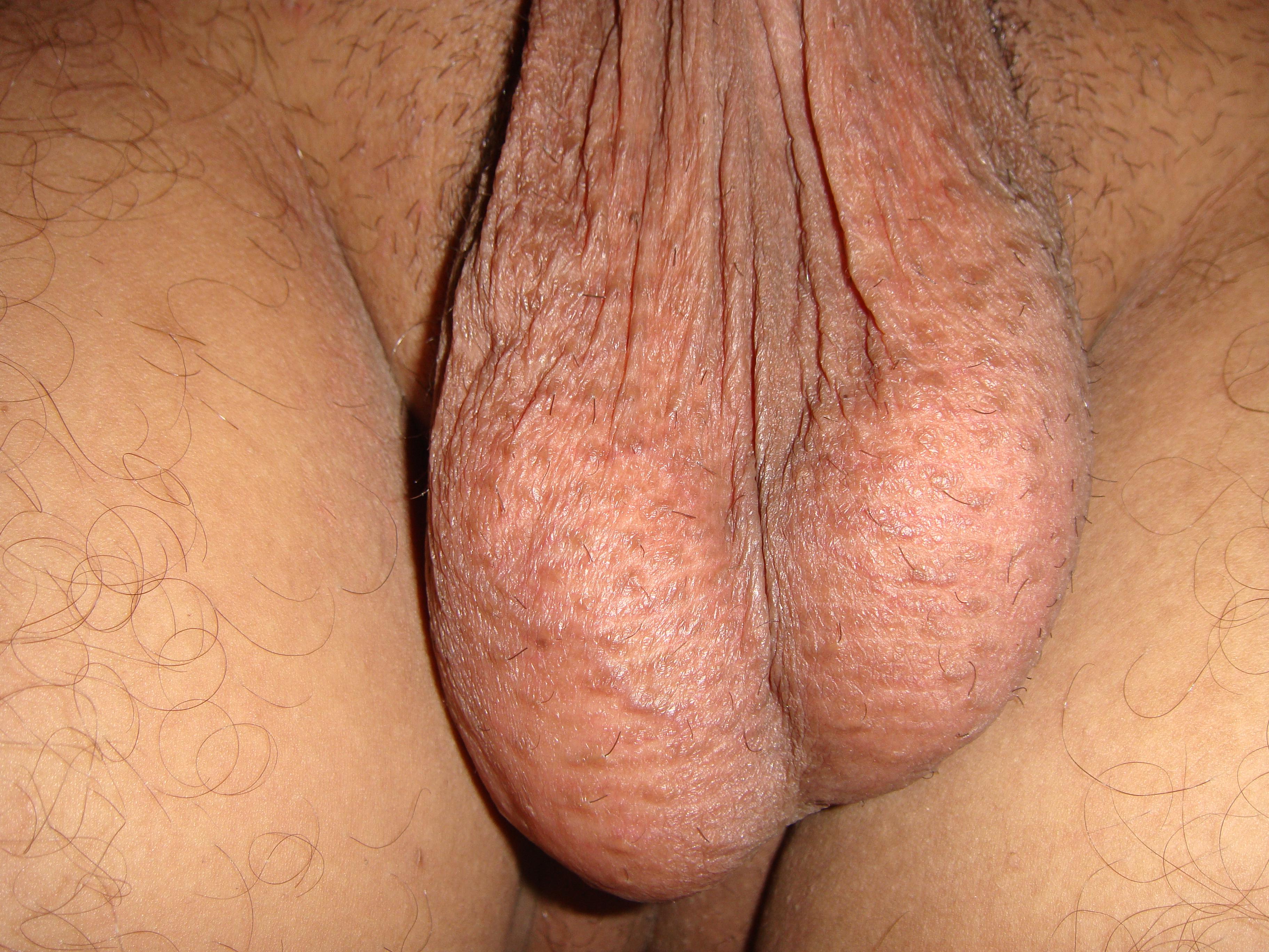 Ампутация мошонки порно