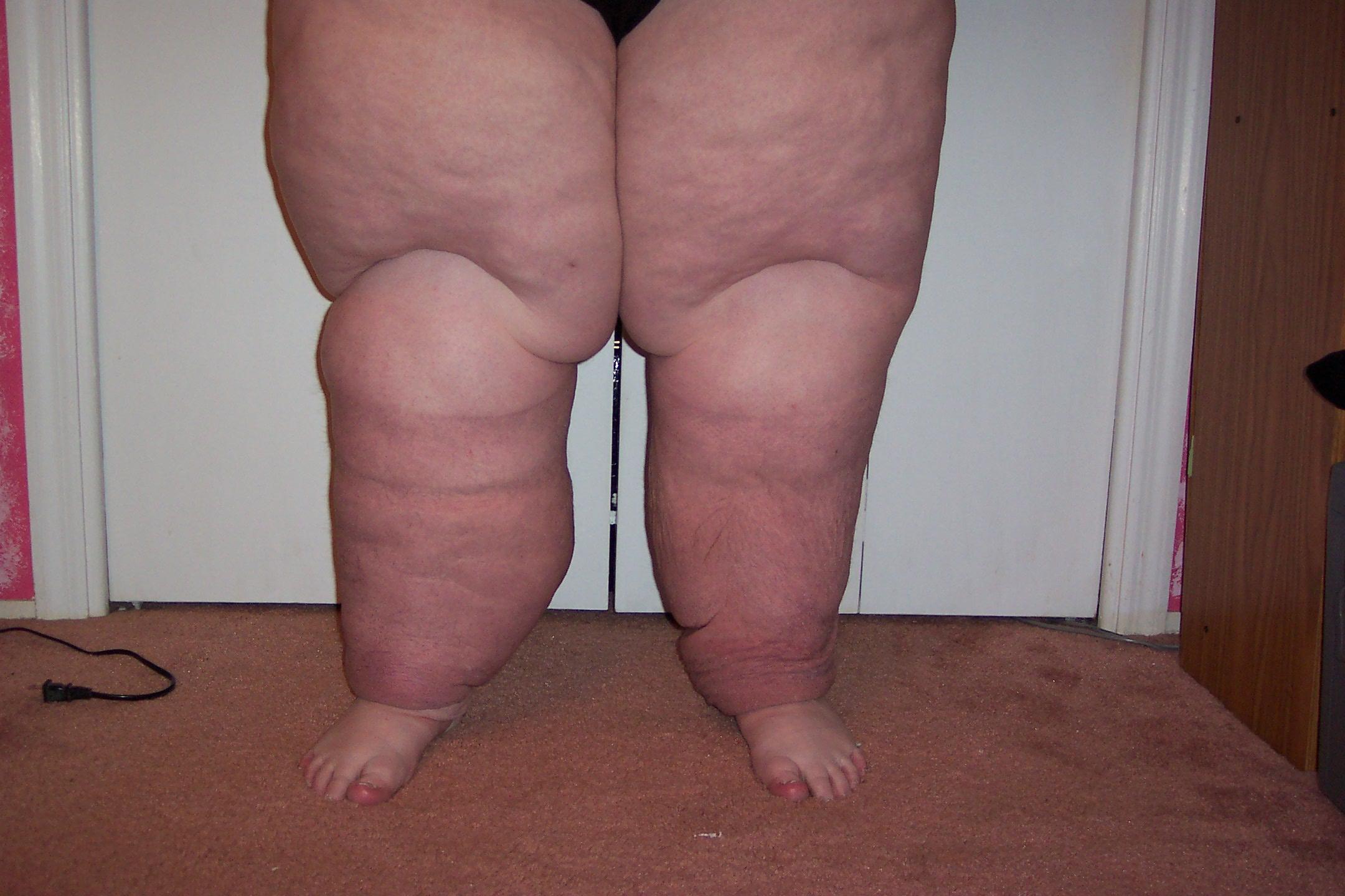 Treatment leg edema x ray