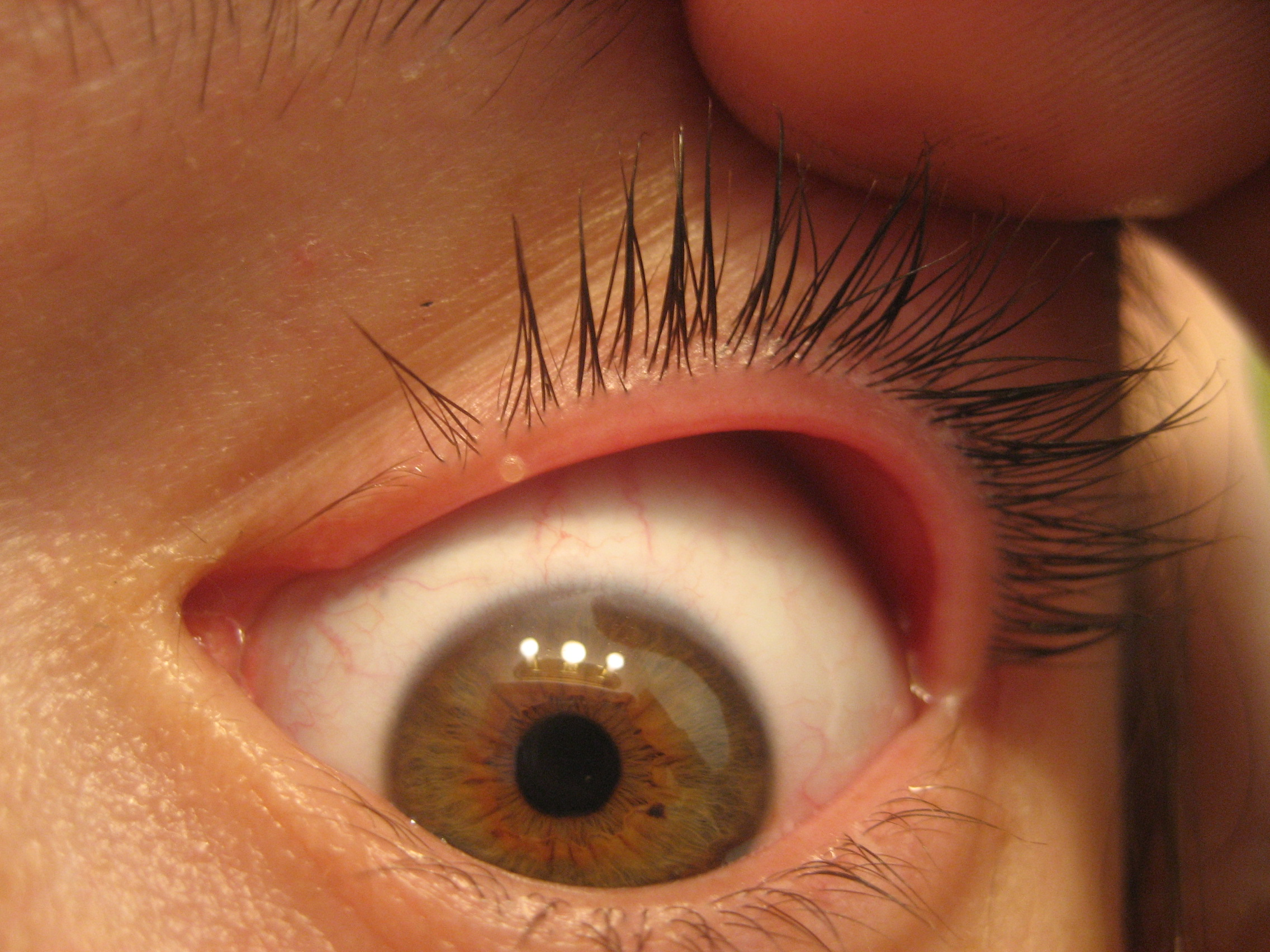 Blepharitis - NHS Choices