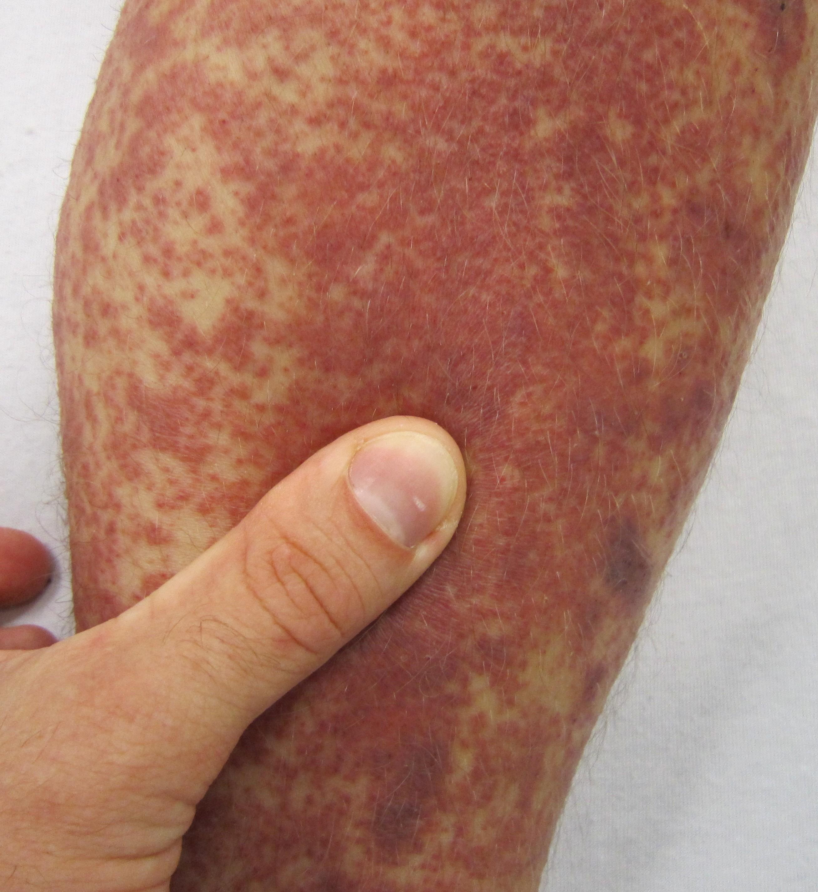 Dengue like illness in bangalore dating 4