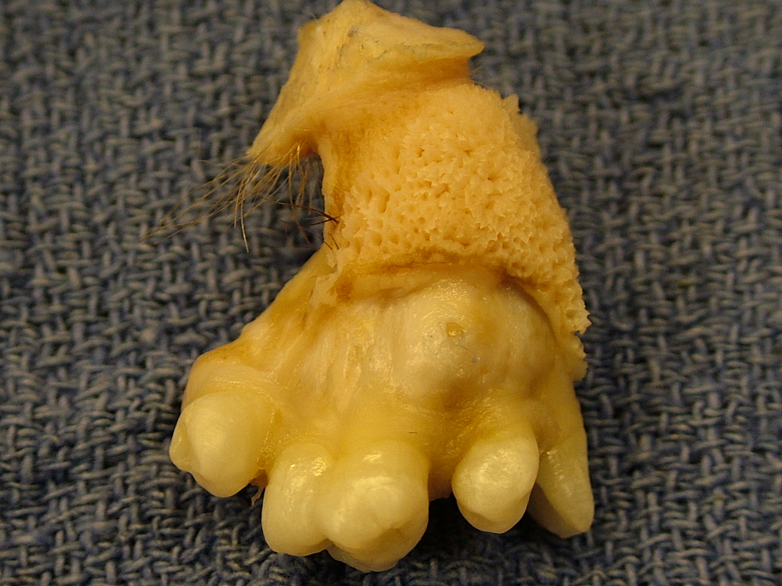 extracted from a left ovary showing mature teeth  skin and hairOvary Cyst With Teeth And Hair