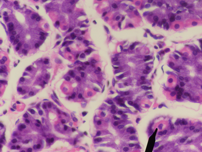 Эпителий в сперме 9 фотография