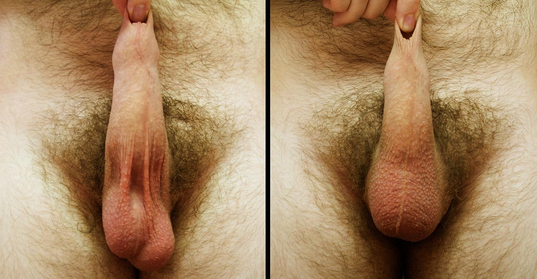 Член и яйца, 11 вещей, которые ты хотела знать о мужских яичках 5 фотография