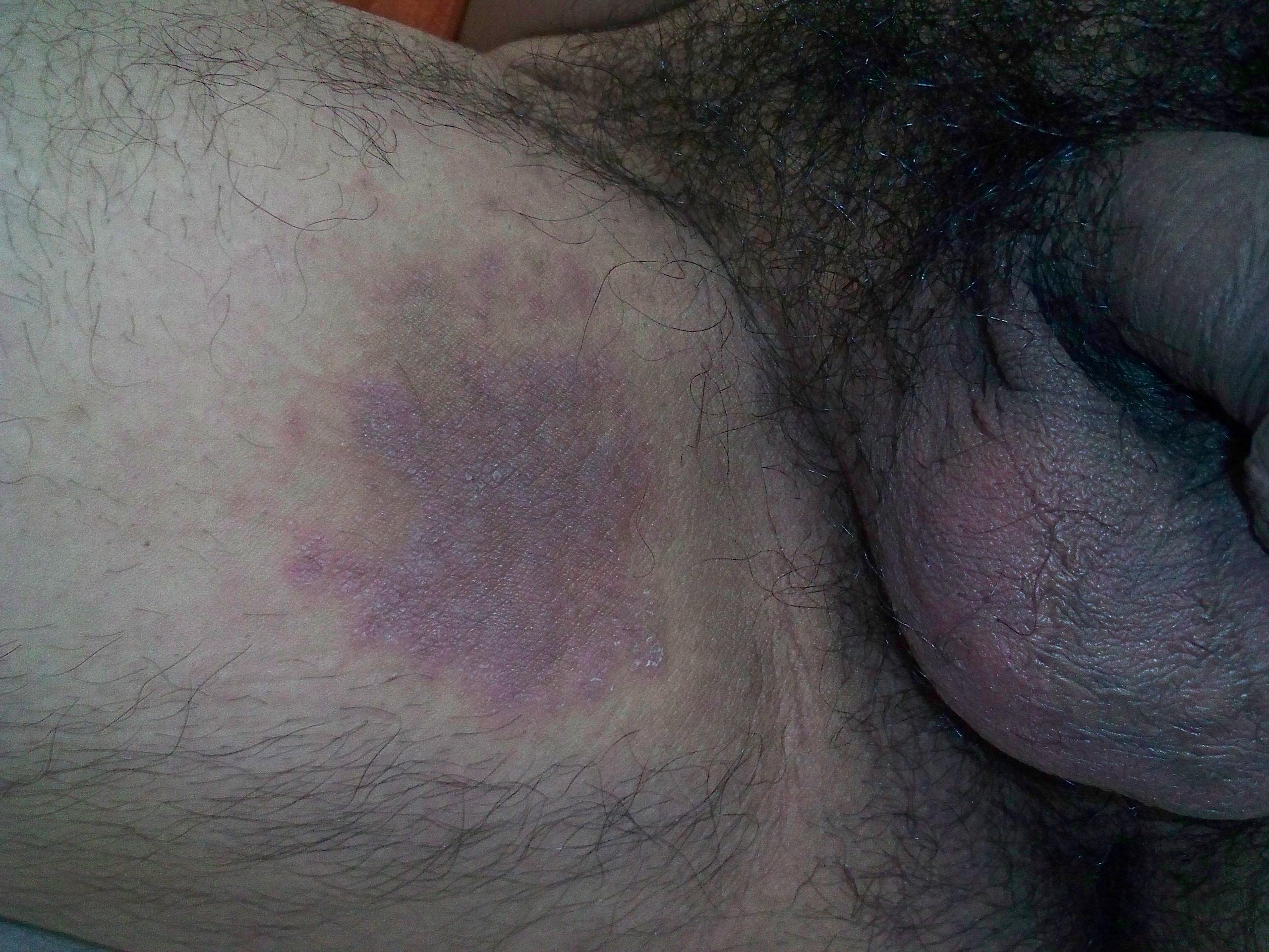 El tratamiento ugrevoy de la eflorescencia sobre la persona el cosmetólogo