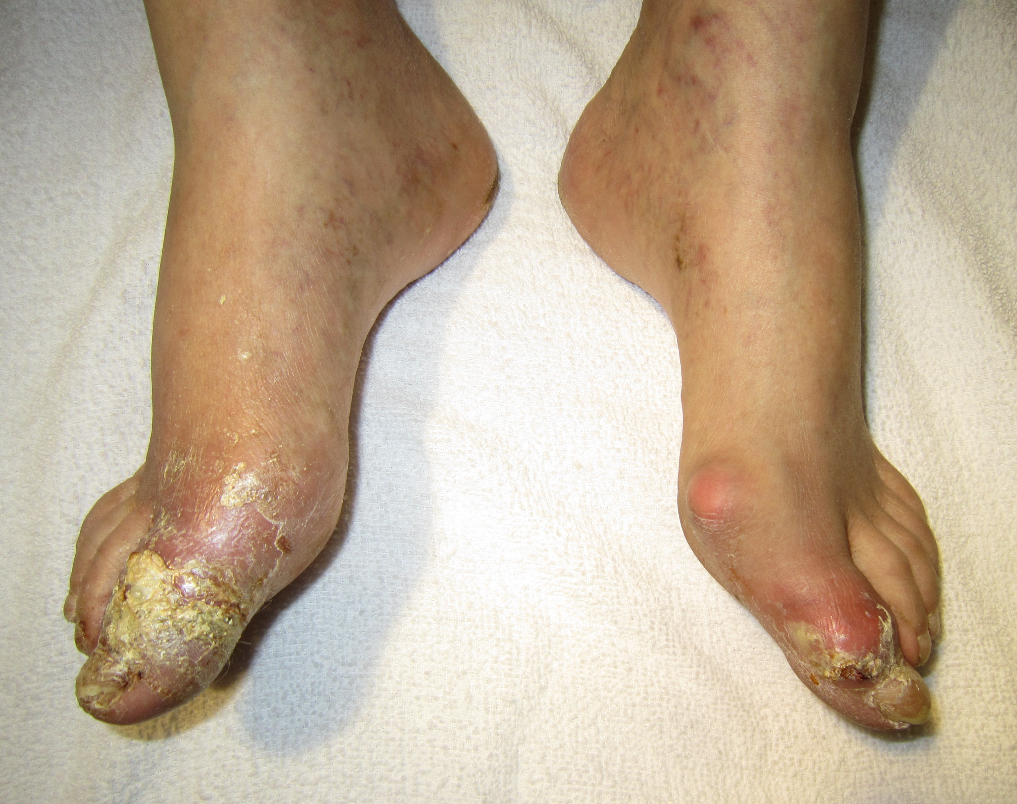 herbal remedies for treatment of gout gout therapy quizlet list foods high uric acid content